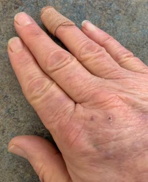 524 -- hand
